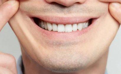 """Qué es la """"depresión sonriente"""" y por qué es más peligrosa que los otros tipos"""