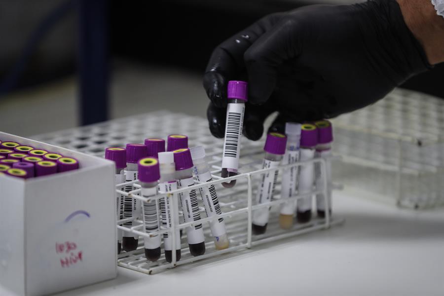 Estudio muestra el primer caso de una mujer que se habría curado del VIH sin tratamiento médico